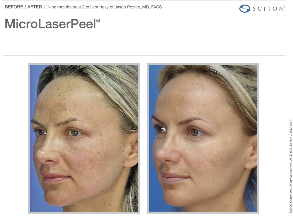 microlaser peel before after