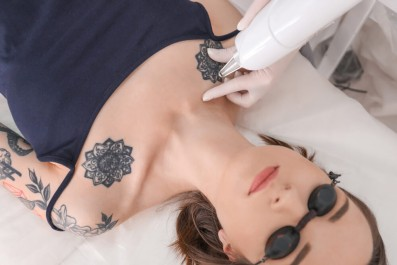 Cover up after laser tattoo removal national laser for Tattoo removal scottsdale az