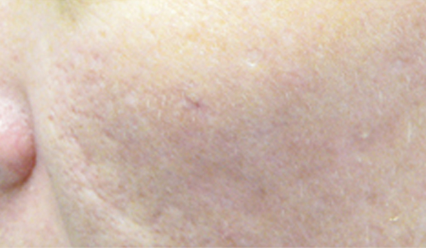 After acne scar reduction