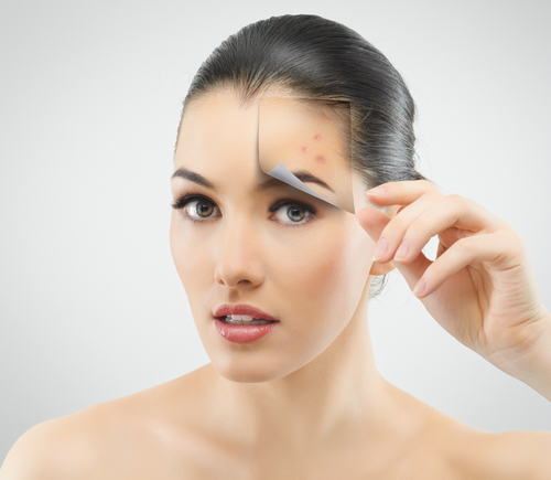 Erase Acne Scars with Sciton Microlaser Peel