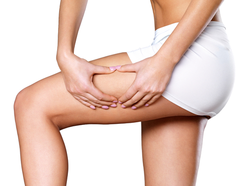 Cellulite Reduction in Scottsdale