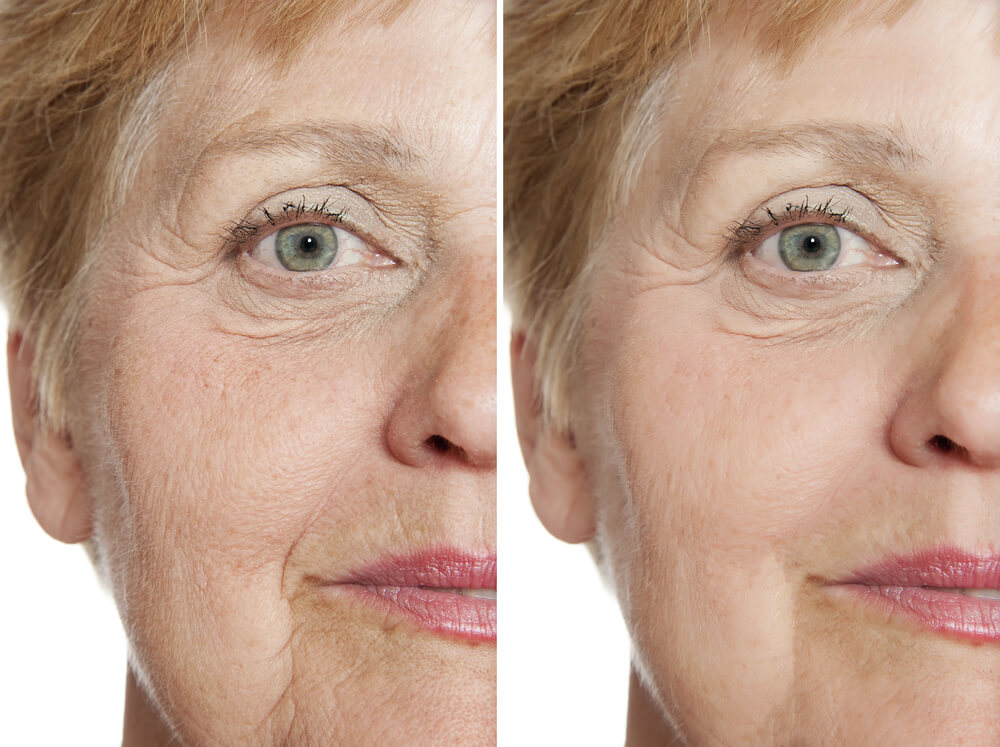 Anti Aging Over 60 National Laser Institute Medical Spa