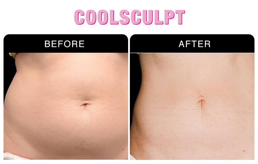Coolsculpt