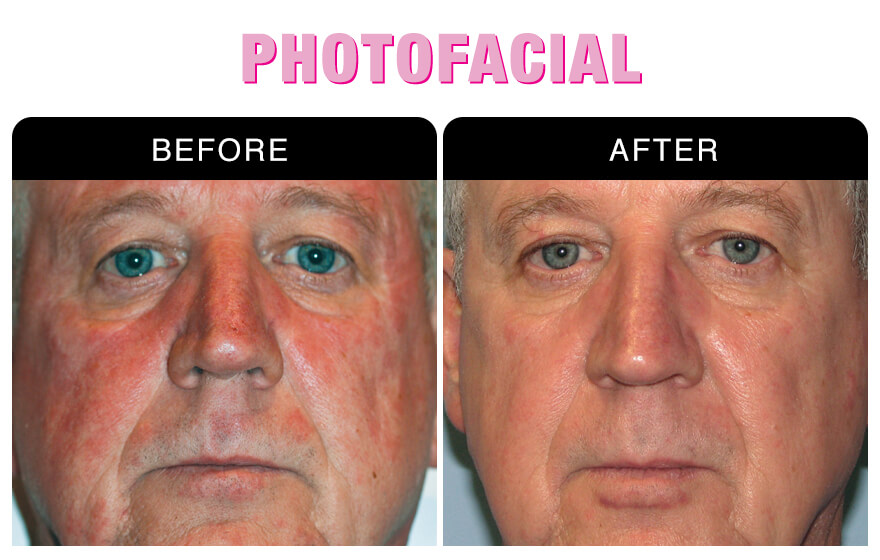 Photofacial Skin Rejuvenation at National Laser Institute
