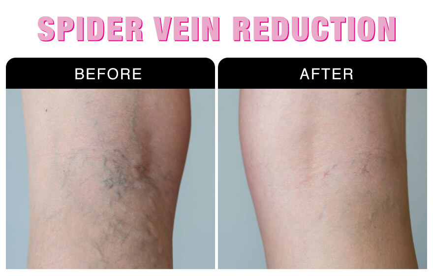 Spider Vein Reduction