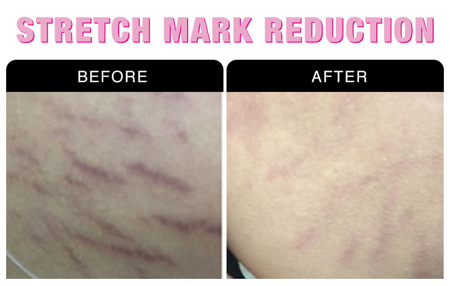 Stretch Mark Reduction Services At National Laser Institute