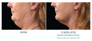 CoolSculpting For Double Chin Removal