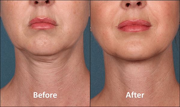Kybella Patient Before and After