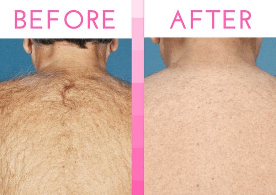 Laser Hair Removal Services At National Laser Institute
