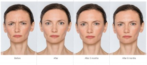 Natural Botox Injections That Last