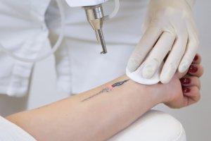 Tattoo Removal FAQ