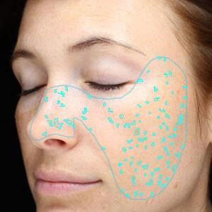 Visia Skin Scan and Consultation