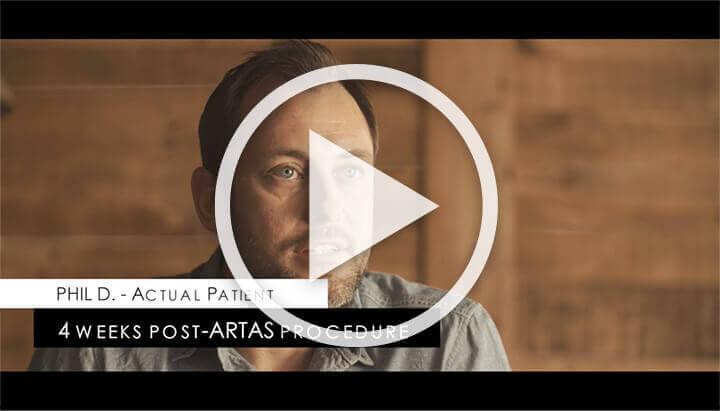 Video: Hear From Actual ARTAS Patients
