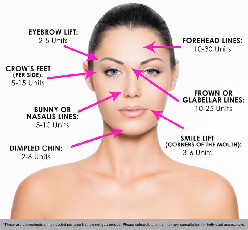botox muscle diagram botox diagram cosmetic injections & fillers - national laser institute ...