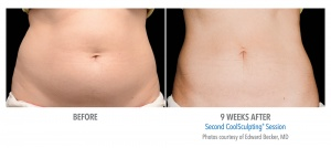 cool-sculpting-before-after-1