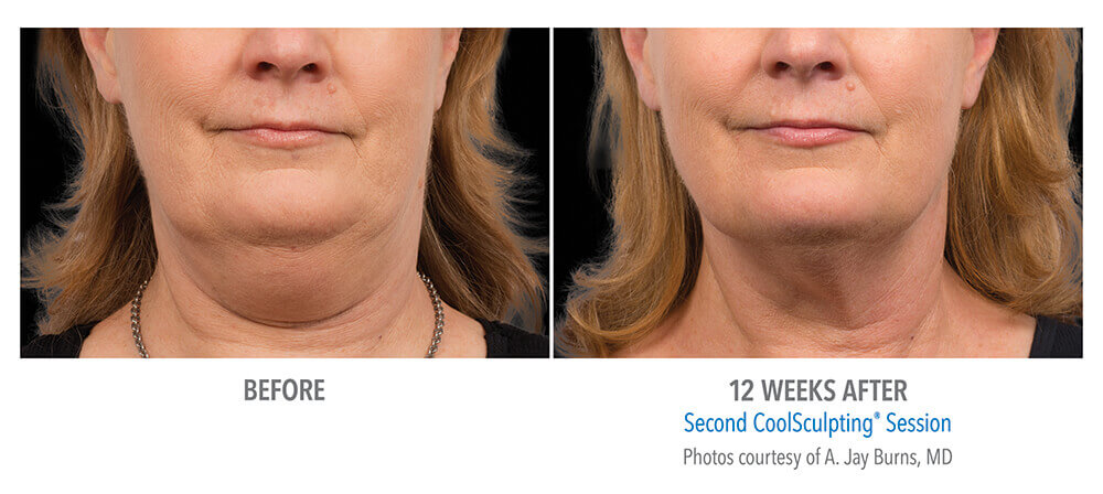cool-sculpting-before-after-3