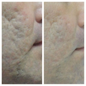 eMatrix Acne Scarring Before and After