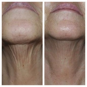 eMatrix Skin Tightening Before and After
