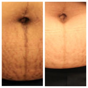 eMatrix StretchMark Before and After