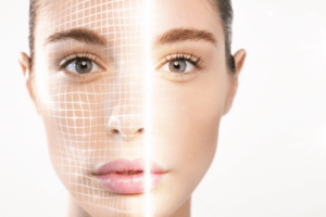 Radiofrequency Skin Rejuvenation