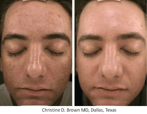 Micro Needling Services At National Laser Institute