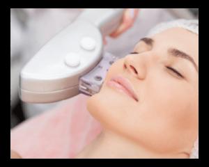 ematrix photofacial treatments