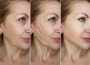 treatments wrinkle reduction