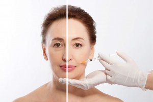 Phoenix dermal fillers treatments