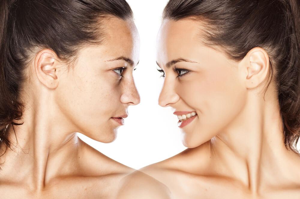 Real vs. Ideal Beauty