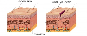 Do Stretch Mark Removal Laser Treatments Work?