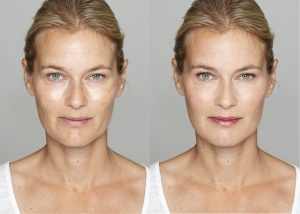 Yolanda Before & After Vi Peel