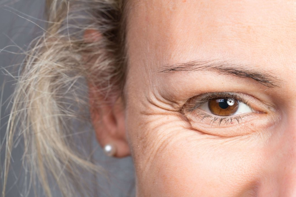 Botox for crow's feet in Scottsdale