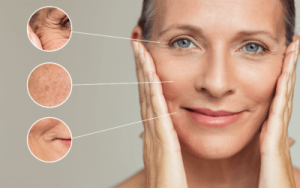 Scottsdale wrinkle treatments